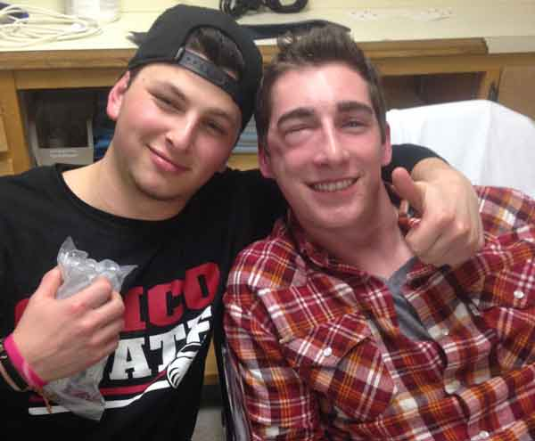 Chico State student Austin Mckinsey and his friend Jon Hilton wait in the hospital after the altercation with possible Norteno gang members. Photo courtesy of Austin Mckinsey.